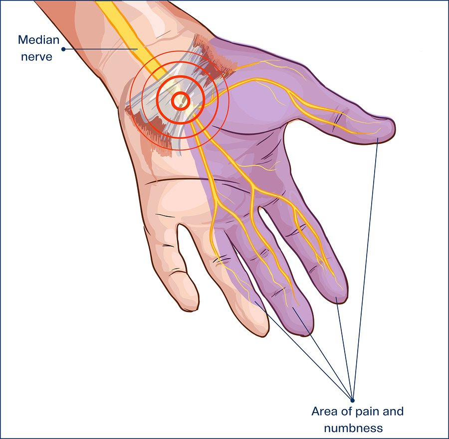Get carpal tunnel syndrome treatment at Precision Medical Group.