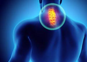 EMG testing will diagnose nerve pain.