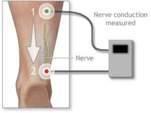 Illustration of a Nerve Conduction Study