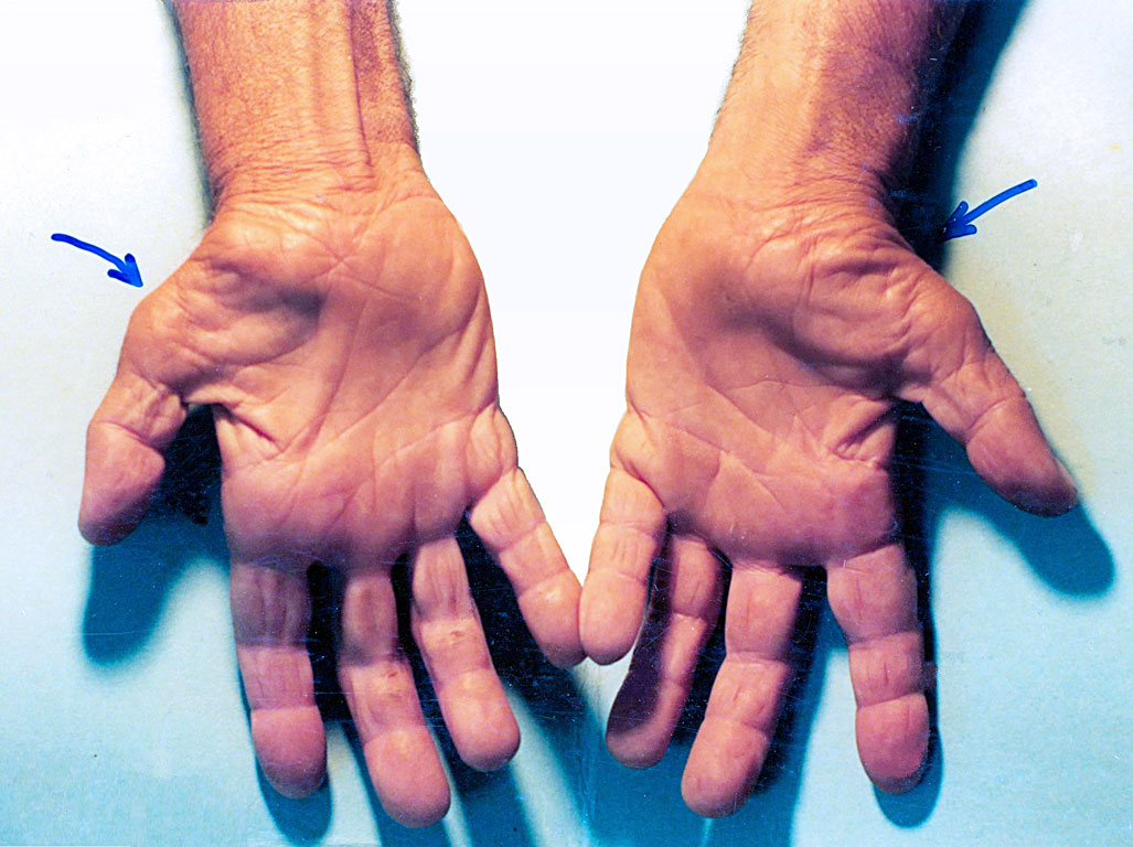 Carpal Tunnel Syndrome Test - Precision Medical Group